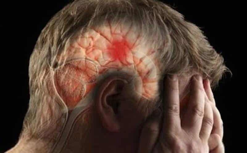Hemiplegia: o que você precisa saber sobre ela?