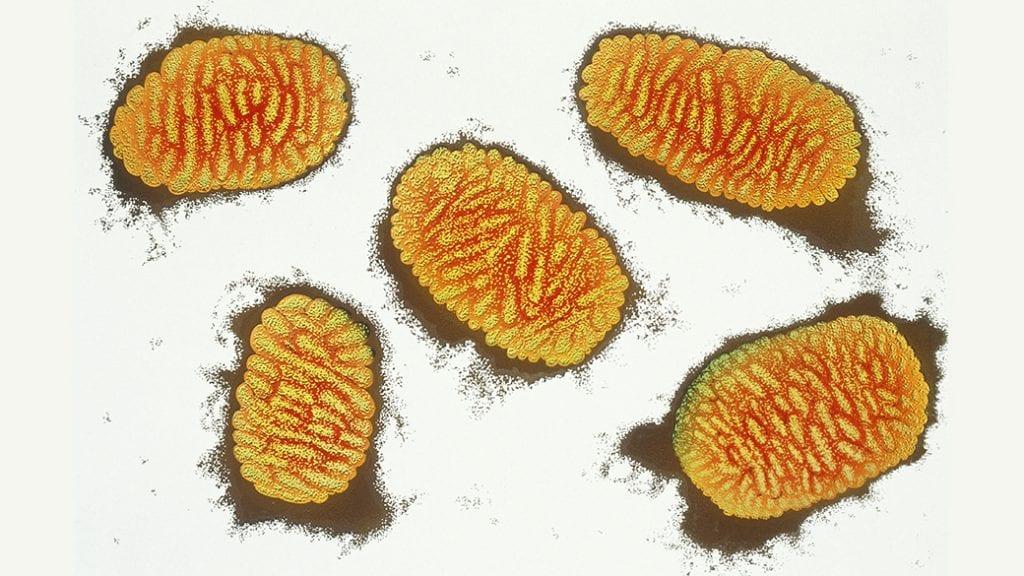Varíola – O que é, sintomas, causas e tratamentos para a doença