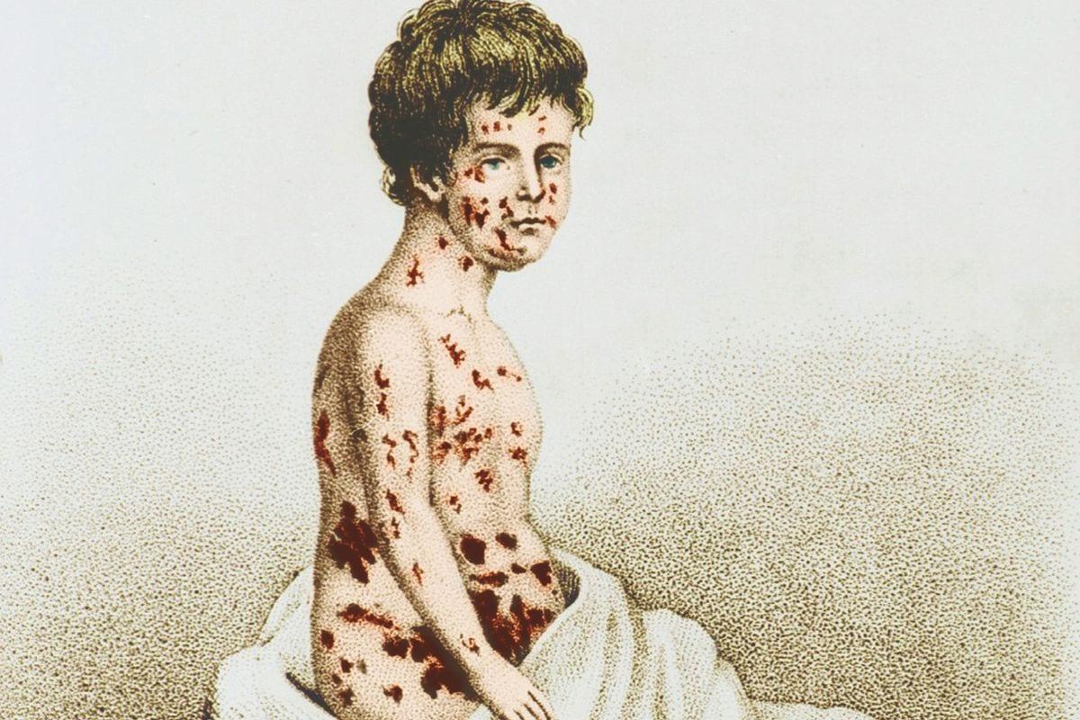 Varíola - O que é, sintomas, causas e tratamentos para essa doença