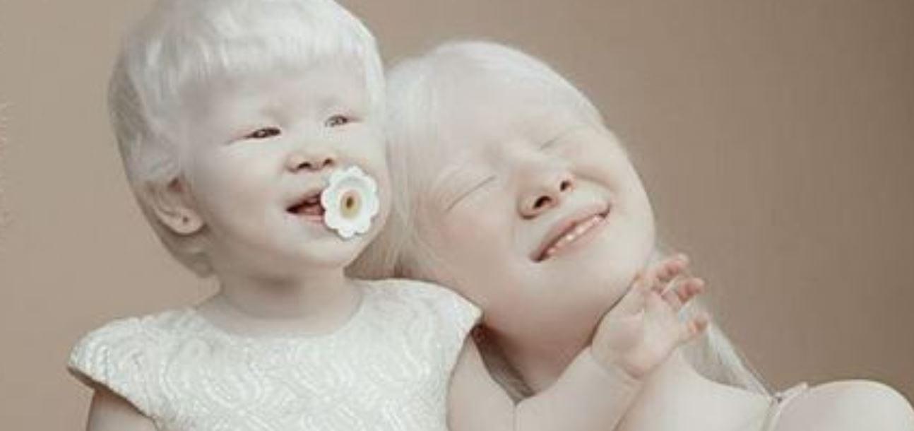 Albinismo - causas, sintomas, tratamentos e riscos da condição