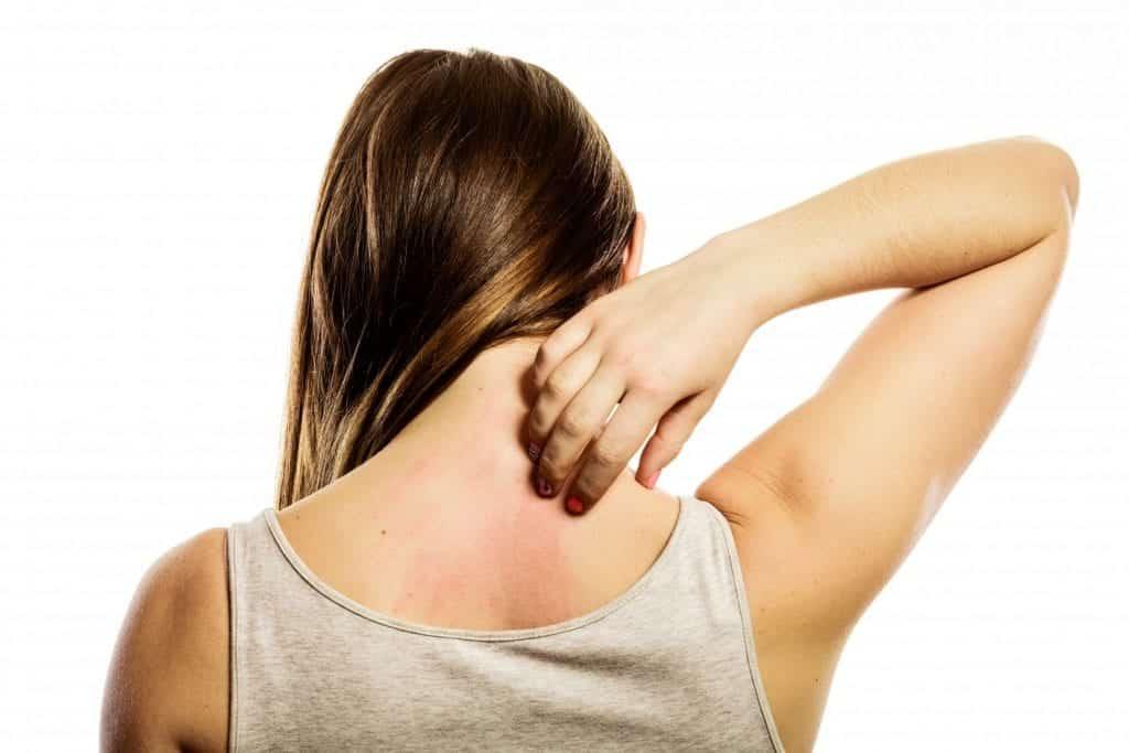 Alergias na pele – Quais são, causas, prevenção e tratamentos