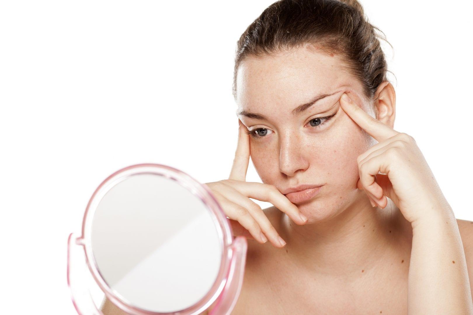 Alergias na pele - o que é, o que causa e como tratar