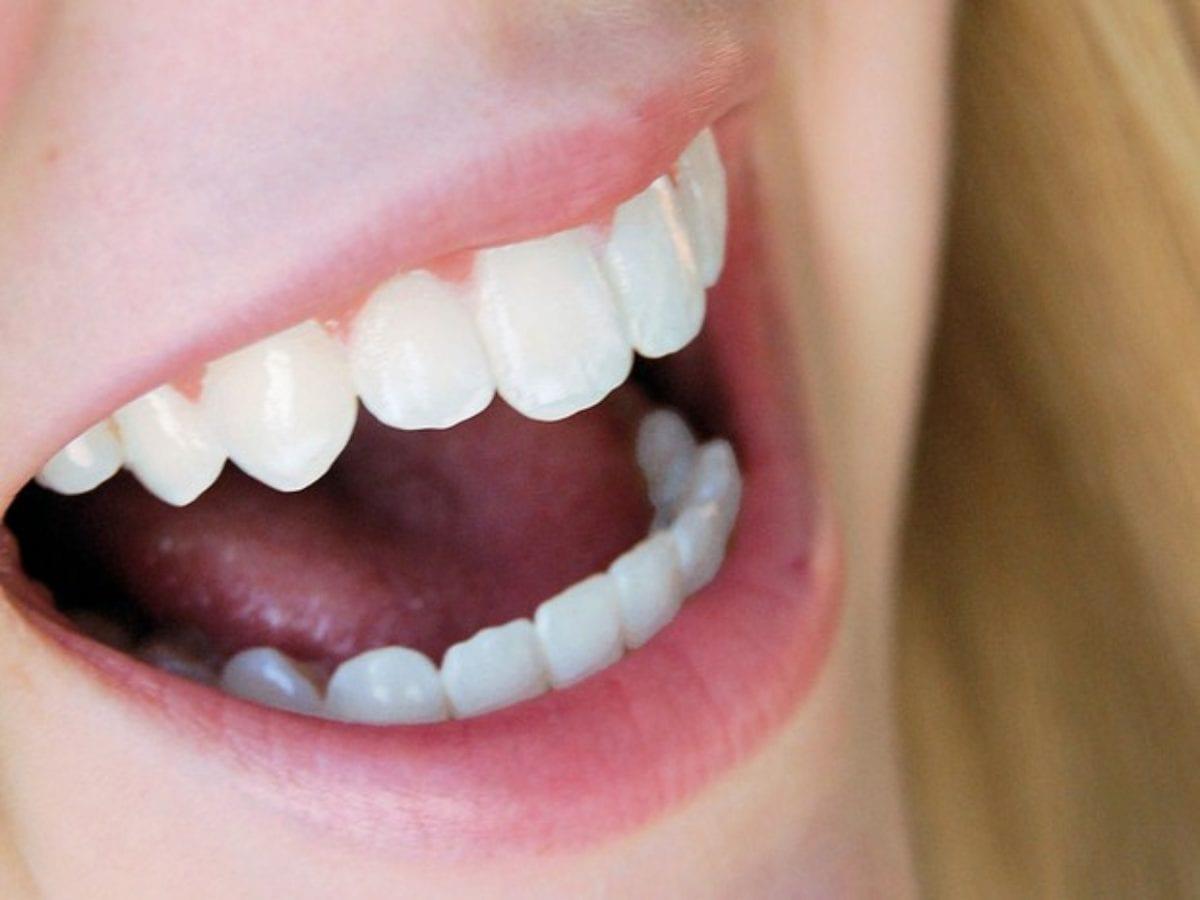 mulher sorrindo após usar antisséptico bucal
