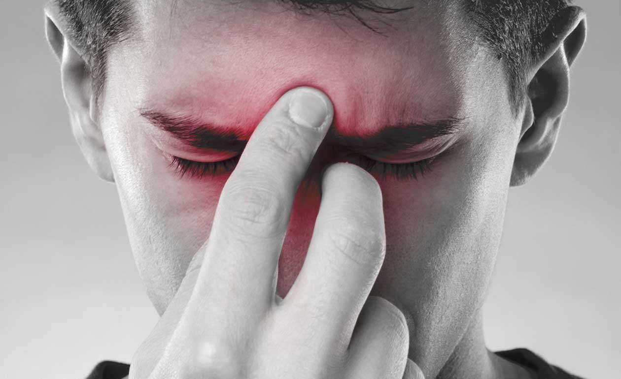 Remédio caseiro para sinusite - 12 opções para aliviar os sintomas