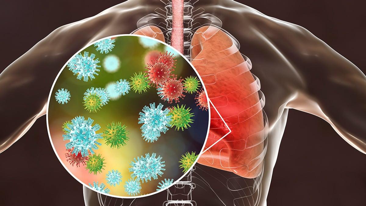 Pico, o que é? Como identificar na pandemia do coronavírus?