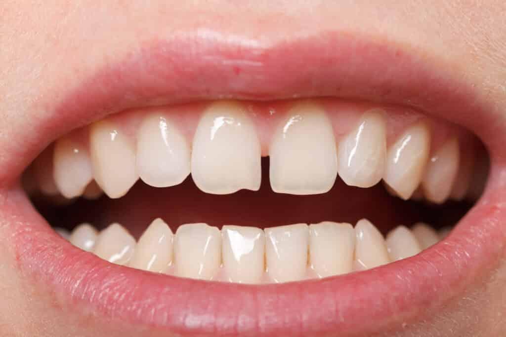 Dente separado – Principais causas, risco para a saúde e tratamentos