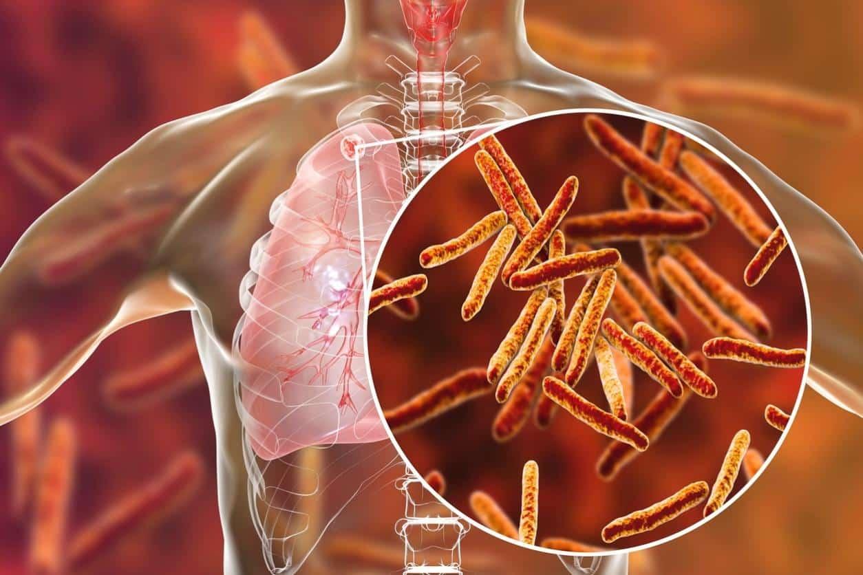 Doenças que mais matam - Conheça um pouco sobre cada uma delas