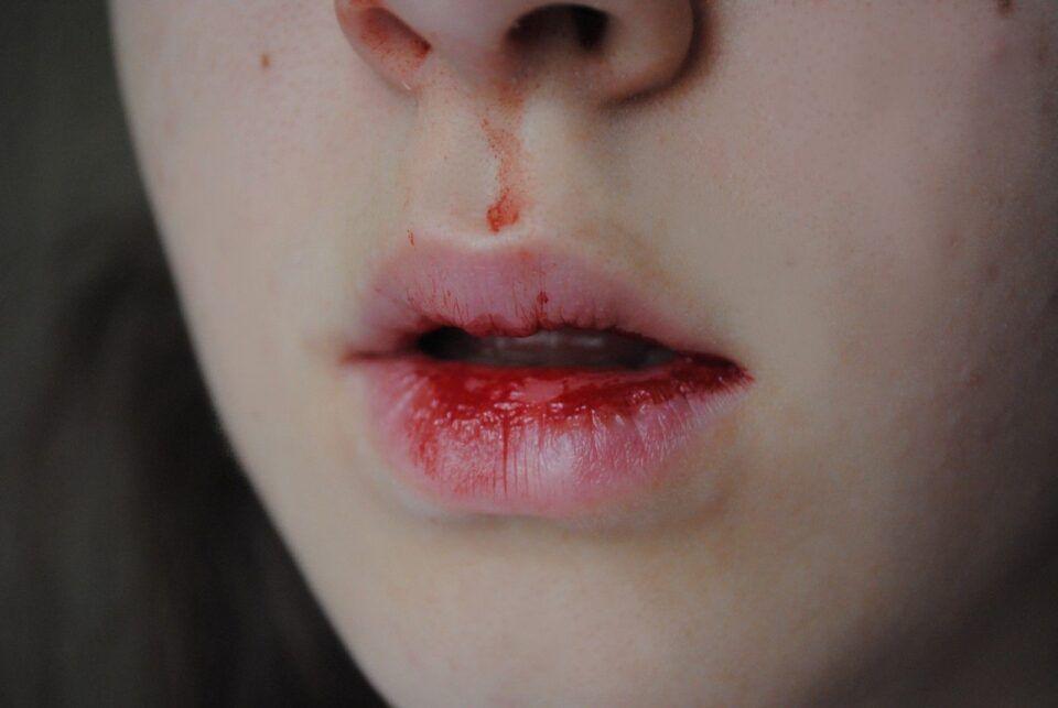 Gosto de sangue – Principais causas para sentir o sabor na boca