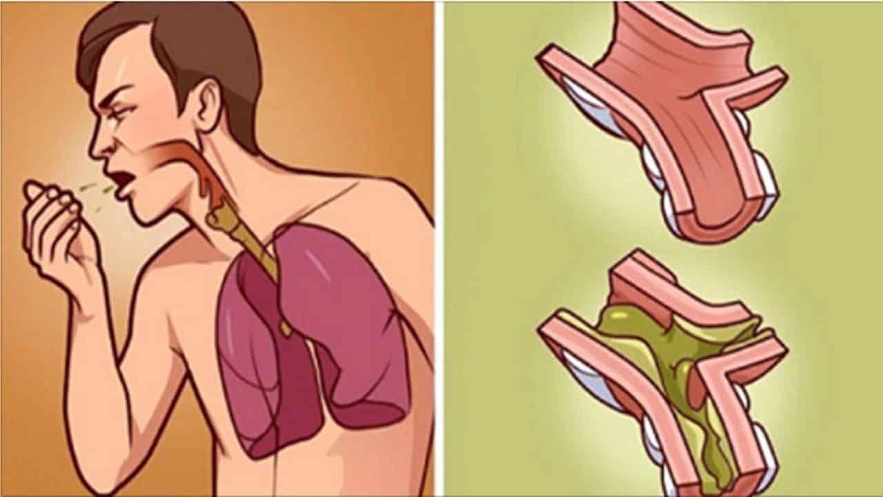 Catarro - Causas, como se forma, sintomas e o que pode indicar