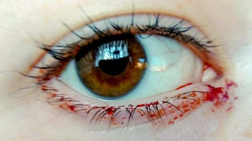 Chorar sangue – Causas e curiosidades sobre a condição rara