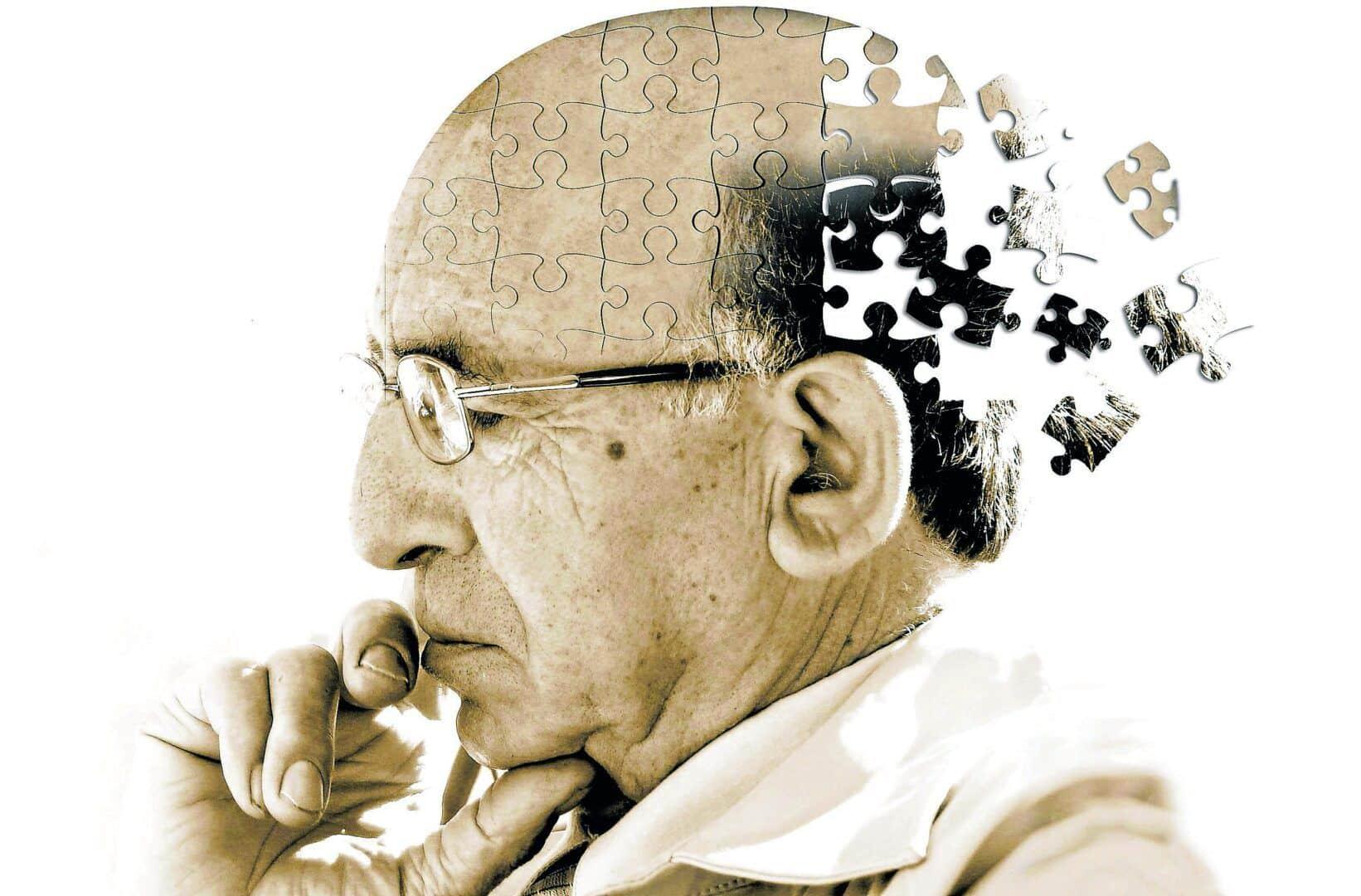 Perder a memória é possível? 10 situações que podem causar o problema