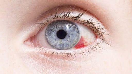 Mancha vermelha nos olhos, o que é? Causas e como tratar