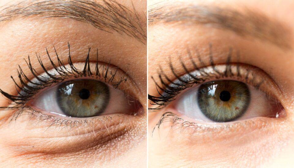 Olho inchado, quais as causas? Sintomas e tratamento
