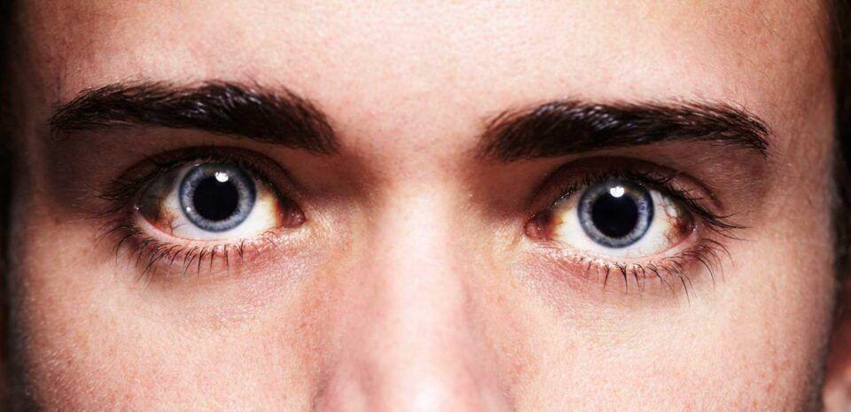 Pupilas dilatadas: 12 principais causas, quando é grave e como curá-las