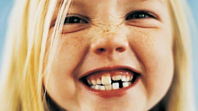 Quantos dentes temos? - diferença de quantidade entre crianças e adultos