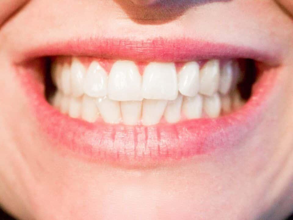 Quantos dentes temos? Diferença de quantidade entre crianças e adultos
