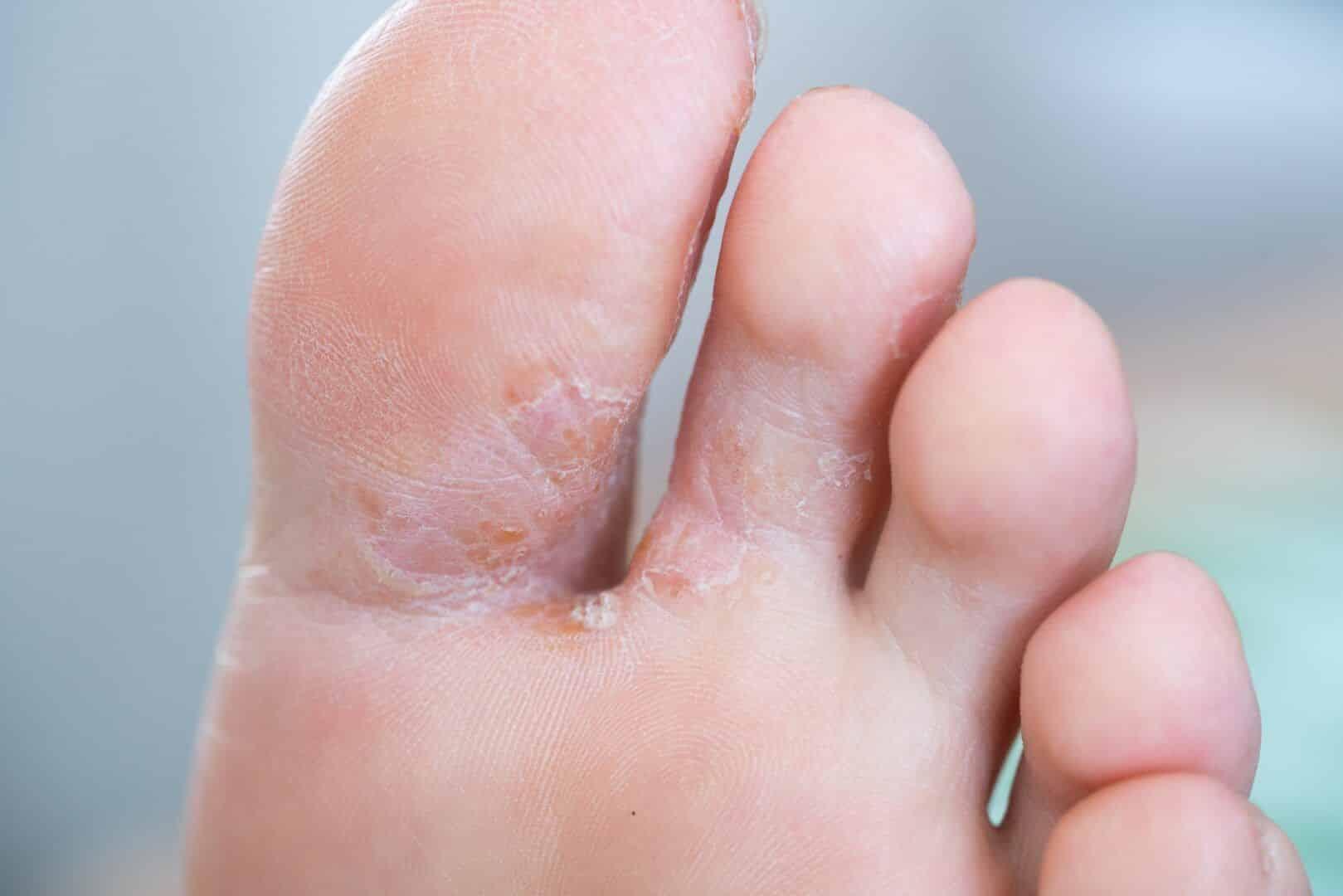 calcanhar rachado o que pode causar sintomas e como tratar 5