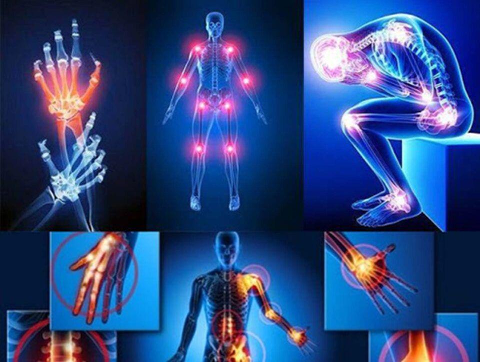 Dor nas articulações, o que pode causar? Como evitar e tratar