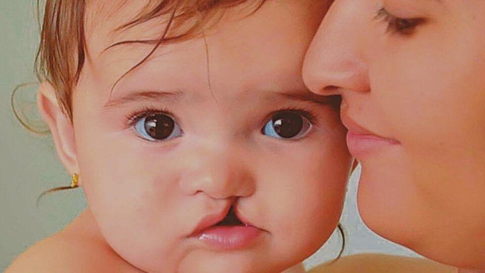 Lábio leporino, o que é? Principais causas, diagnóstico e tratamento