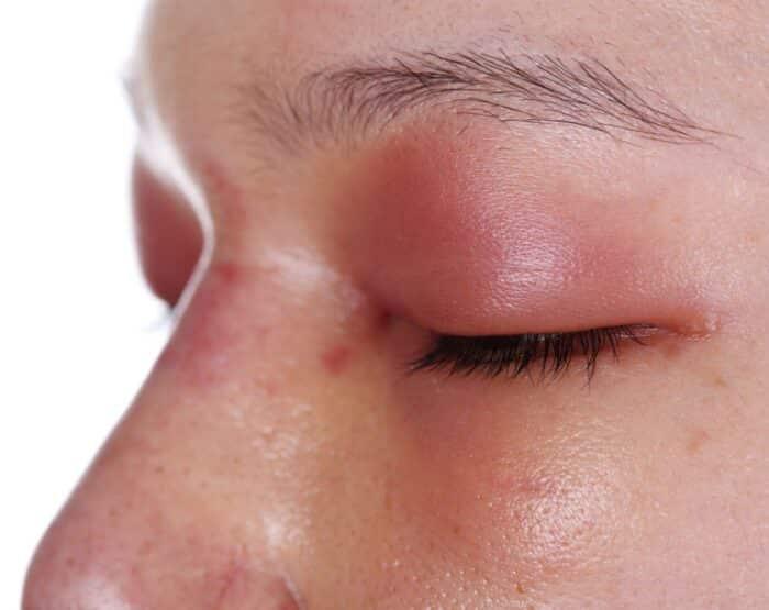Pálpebras inchadas: causas e tratamento para inchaço ao redor dos olhos