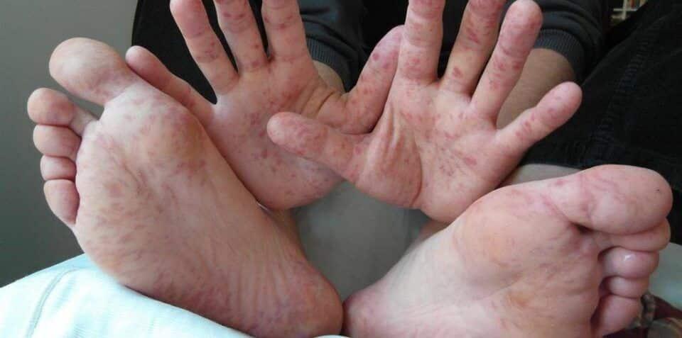 Síndrome pé-mão-boca, o que é? Sintomas, como evitar e tratamento