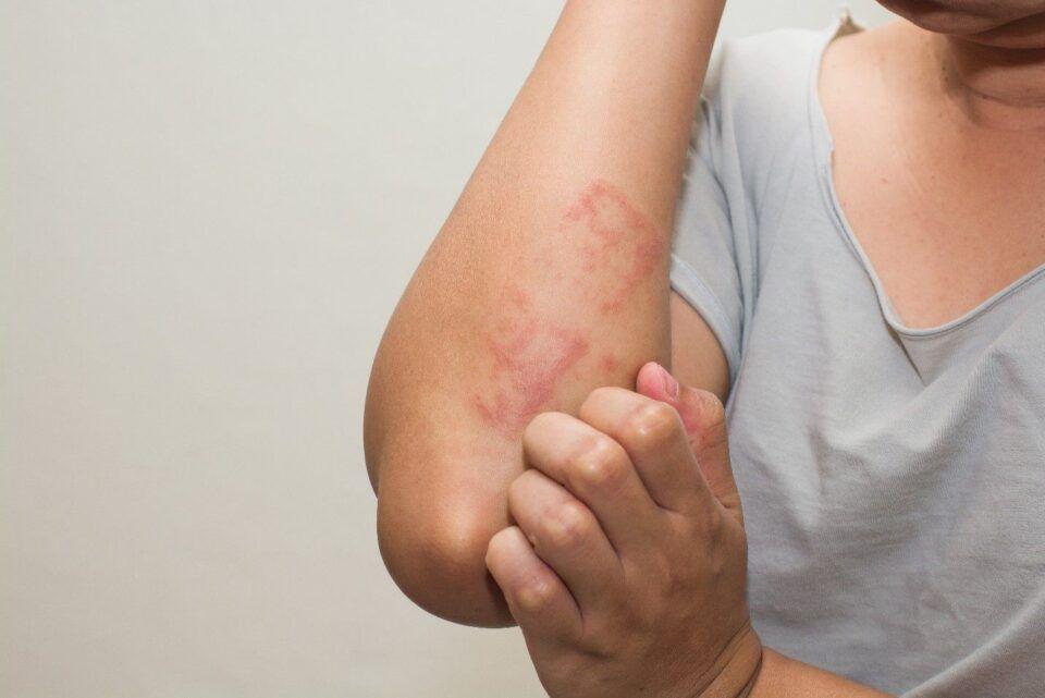 Sintomas de alergia – Como reconhecer as principais reações alérgicas