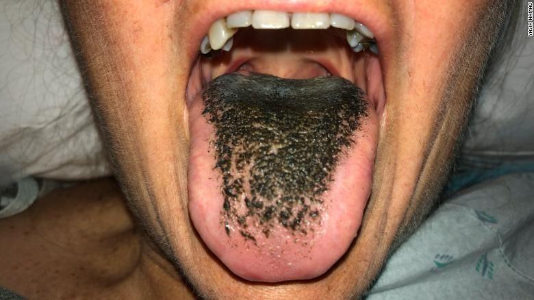 Doenças da língua - principais problemas de saúde no órgão da boca