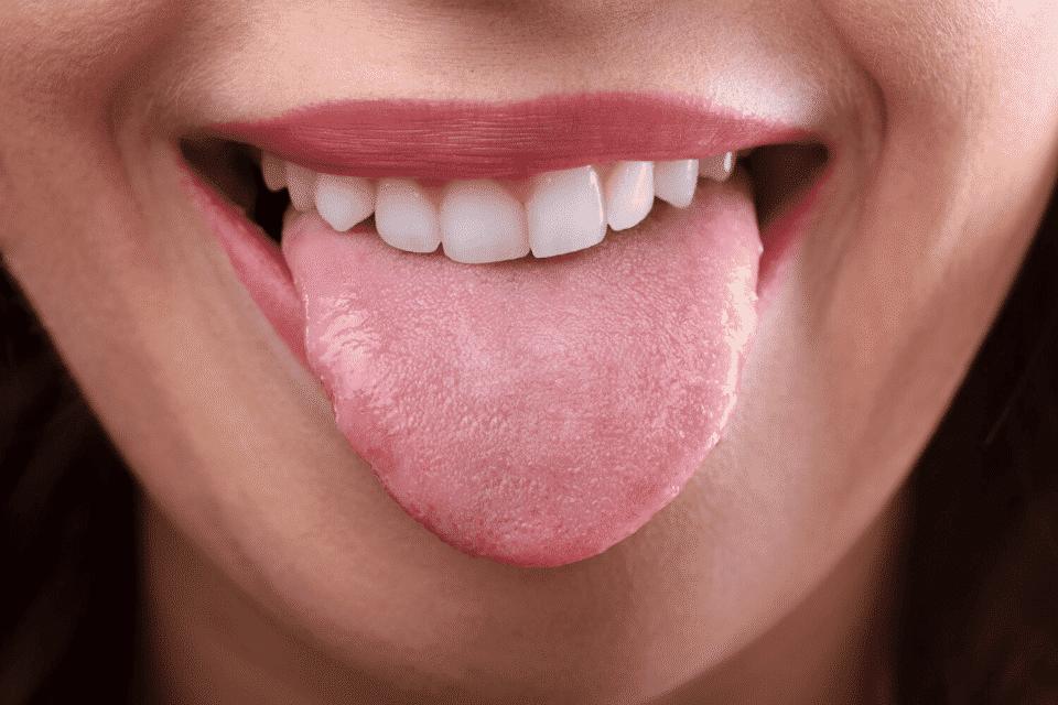 Doenças da língua – Principais problemas de saúde no órgão da boca