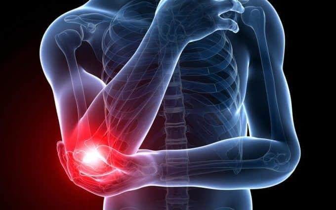 Dor no cotovelo - as principais causas para o surgimento do sintoma