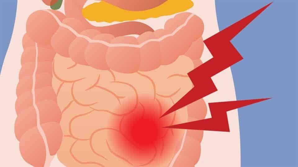 Gases na barriga – Principais causas, tratamento e como evitar