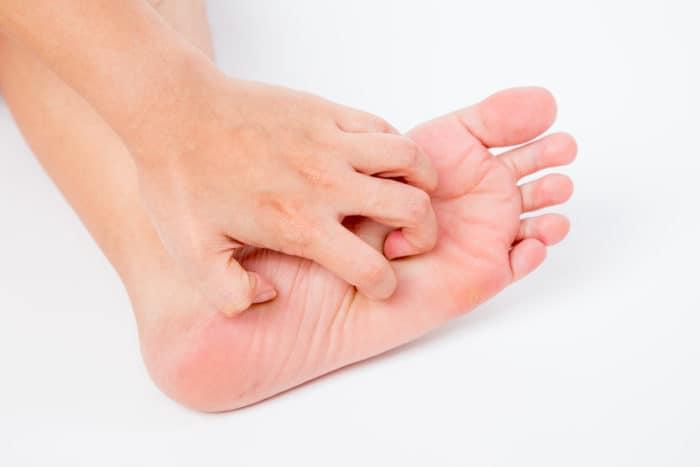 o que e bicho geografico causas sintomas e tratamento da infeccao 1
