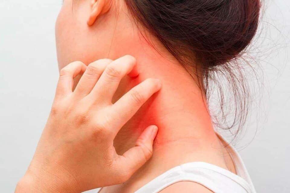 Reação alérgica – O que pode causar e como tratar os sintomas