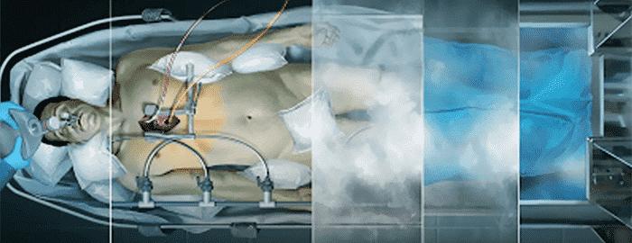 Criogenia - o que é, como funciona e uso em tratamentos de saúde