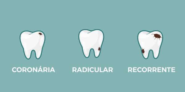 Dente cariado - principais sintomas e tratamentos para remoção
