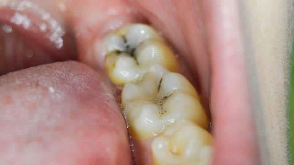 Dente cariado – Principais sintomas e tratamentos para remoção