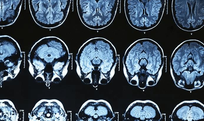 O que é Alzheimer - principais sintomas, causas e formas de tratamento