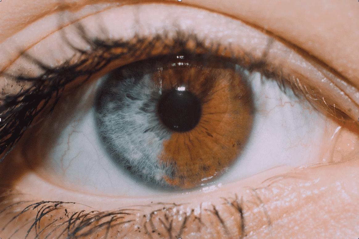 O que é heterocromia - características tipos e principais causas