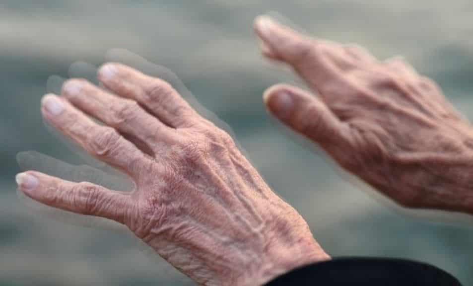 O que é Parkinson? Sintomas, causas e tratamentos para a condição