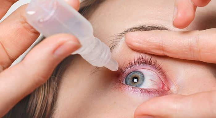 Olho vermelho - principais causas, variações e formas de tratamento