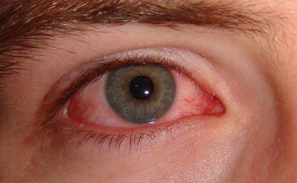 Olho vermelho – Causas, variações e formas de tratamento