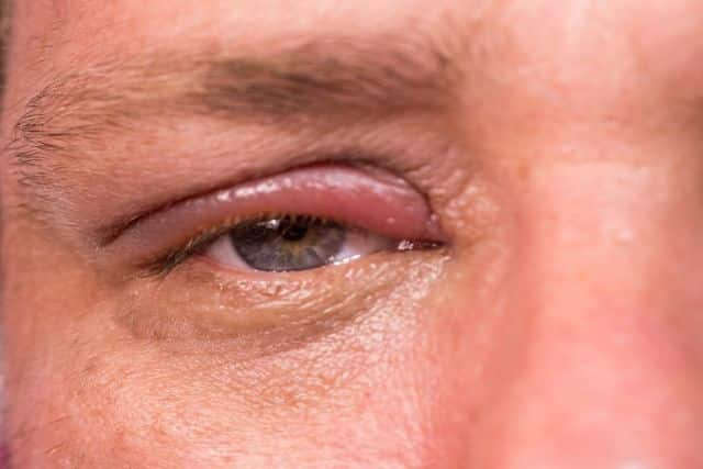 Remela - como são formadas e principais causas de acúmulo nos olhos