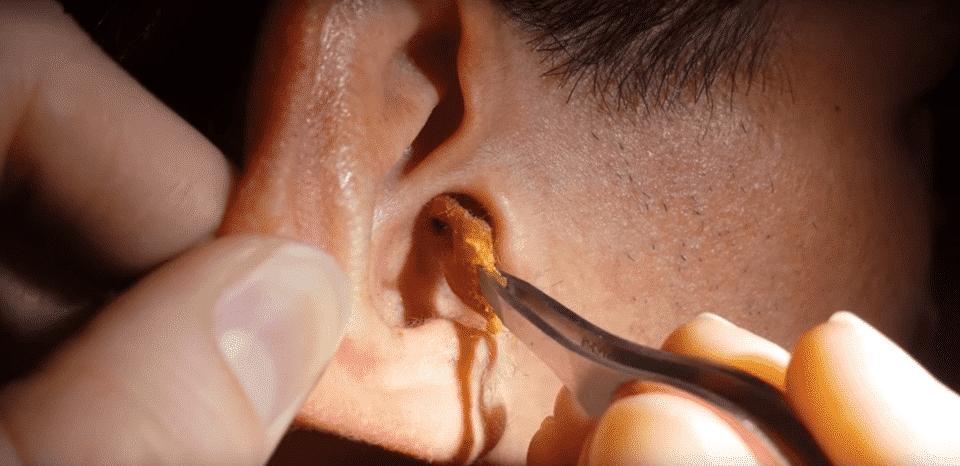 Cera de ouvido: para que serve e como limpar corretamente