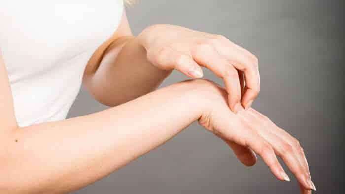 Fotografia de uma mulher coçando a pele para ilustração do item