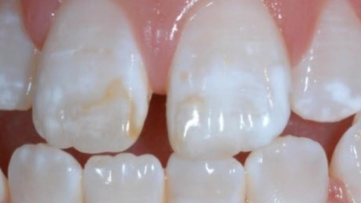 Mancha branca nos dentes - principais causas e formas de tratamento