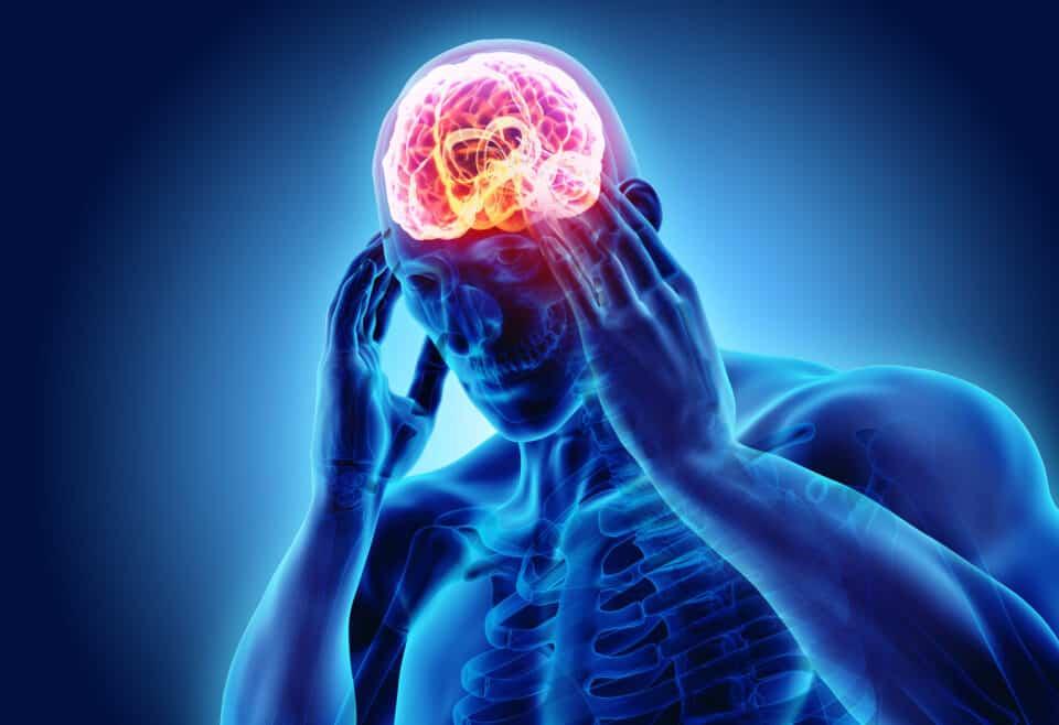 Tipos de dores de cabeça: quais são, causas e tratamentos