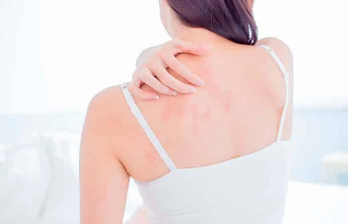 Alergia ao calor, o que é? Causas, sintomas e tratamento